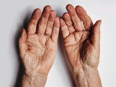Older hands, Credit: Stock Photography