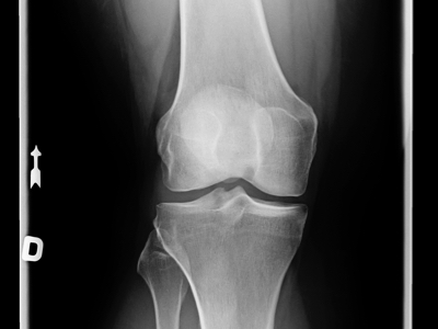 Knee X-Ray, Credit: Stock Photography