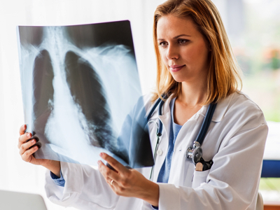 Doctor Reviewing Lung X-ray, Credit: Stock Photography