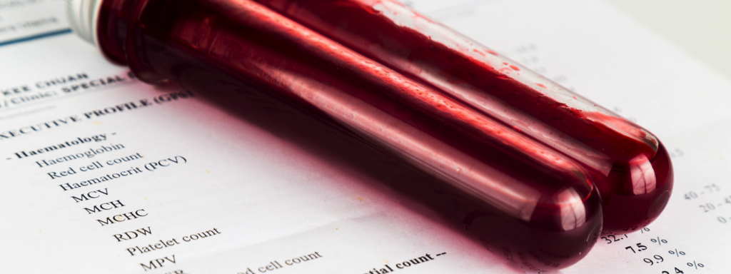Blood Testing Sample, Credit: Stock Photography
